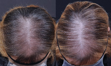 Study shows female alopecia efficacy