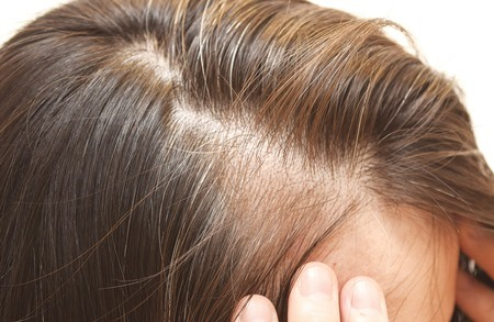 Formulation considerations for a healthy scalp